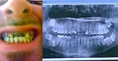 His Teeth Hurt So Badly He Wanted To Die, Then Something Crazy Happened