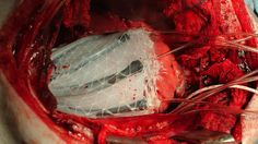 ROBOT. El aparato regulará el flujo cardíaco.