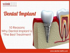 Dental implants have replaced temporary traditional removal bridges. They blend with your teeth making it more comfortable and give it a natural feel! More : http://goo.gl/U3RVFm