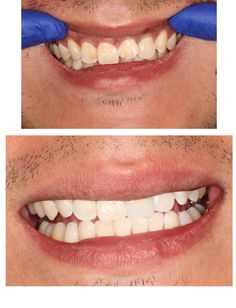 Before & After Cerec Crown and Zoom whitening Zoom Whitening, Simi Valley, Cosmetic Dentistry, Dental Care, Appointments, Crowns, Cosmetics, Dental Caps, Dental Health