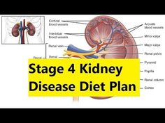 Stage 4 Kidney Disease Diet Plan - Natural Treatment for Kidney Failure Stage 4