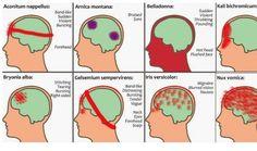 headache-report - migraine #headacherelief #headache #migraine #headpain #sinus
