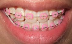 Clear Braces Colored Bands Rubber bands for my braces