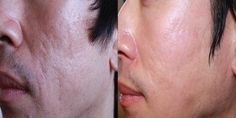 Micro needling before and after pictures for reducing wrinkles, sun damage, acne scars, pigmentation and hair loss. Learn what skin needling can help. Skin Care Regimen, Skin Care Tips, Microneedling For Acne Scars, Laser Skin Rejuvenation, Skin Needling, Acne Solutions, Skin Tightening, Stretch Marks, Skin Problems