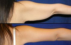 Lose arm fat in a week without gaining muscle (video guide)