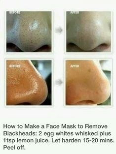 skin beauty remedies Home Remedies to Get Rid of Blackheads Fast and Naturally (Nose/Face) - How get rid of blackheads? How to get rid of blackheads overnight and fast. Get rid of blackheads on nose. How to get rid of blackheads naturally at home. Beauty Care, Diy Beauty, Beauty Hacks, Fashion Beauty, Face Beauty, Nail Fashion, Beauty Skin, Get Rid Of Blackheads, Pimples