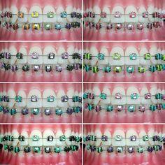 Orthodontics Fun colors for your braces to consider at your next appointment! Dental Braces, Teeth Braces, Green Braces, Braces Problems, Cute Braces Colors, Braces Bands, Apocalypse, Getting Braces, Braces Girls