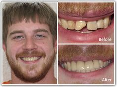 Cosmetic Dentist Philadelphia - Before and After Cosmetic Dentistry procedure