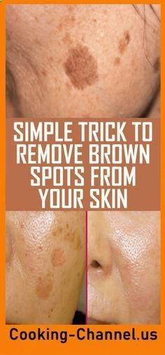 Simple Trick To Remove Brown Spots From Your Skin – Gonnee Lifestyle There is nothing scary with having a few brown spots, also known as age spots, but things get really messy when these spots affect one's self-confidence. Brown Spots On Skin, Skin Spots, Dark Spots, Brown Skin, Health Tips For Women, Health And Beauty, Health Advice, Health Care, Mental Health
