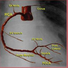 Simple figure for coronary arteries Heart Catheterization, Cardiac Catheterization, Cath Lab Nurse, Arteries Anatomy, Cardiac Sonography, Medical Anatomy, Cardiac Anatomy, Cardiac Nursing, Critical Care Nursing