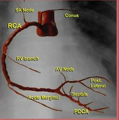 Simple figure for coronary arteries