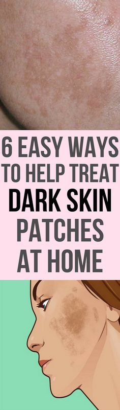 You can treat dark skin patches at home with this 6 easy ways