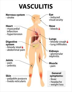 Vasculitis Signs and symptoms. disorders that destroy blood vessels by inflammation. Human silhouette with highlighted internal organs. Image Copyright: Designua / Shutterstock