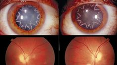 After a 40yr. old man was struck in the shoulder with 14, 000 volts of electricity, this happened about a year later to his retinas. He has star shaped cataracts now.