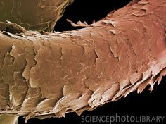hair shaft microscope - Google Search