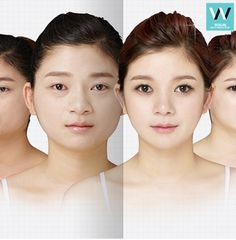 As you can see! Plastic surgery in KR creates a miracle !