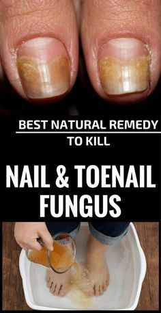 Some of these Best Natural Home Remedies for Toenail Fungus May Surprise You! Finding the best natural home remedies for toenail fungus can help you deal with this unsightly nail infection effectively without resorting to Natural Home Remedies, Natural Healing, Natural Oil, Holistic Healing, Cooking With Turmeric, 2 Ingredient Recipes, Toenail Fungus Remedies, Fungus Toenails, Toe Fungus Cure