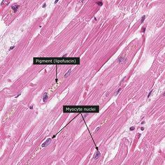 Normal: Heart muscle
