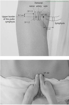 ST-30-Rushing-Qi-QICHONG-Acupuncture-Points-1.jpg 586×884픽셀