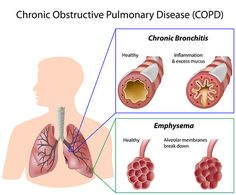 Home Remedies for Bronchitis--tons of useful info!!!!