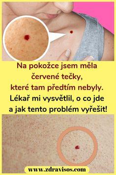 Na pokožce jsem měla červené tečky, které tam předtím nebyly. Lékař mi vysvětlil, o co jde a jak tento problém vyřešit! #pokožce #červenétečky #zdraví