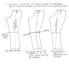 Knock knee adjustment?