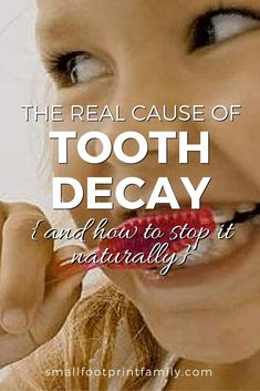 Ever wonder why some people seldom brush their teeth and have no cavities? Here's why, and how to stop tooth decay naturally. Dental Health, Oral Health, Dental Care, Dental Implants, Dental Hygienist, Dental Surgery, Causes Of Tooth Decay, Tooth Extraction Healing, Heal Cavities