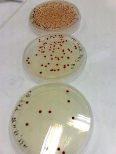 Plates with Vibrio sp.