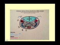 Anterior Spinal Artery Syndrome: CRASH! USMLE Step 2 and 3