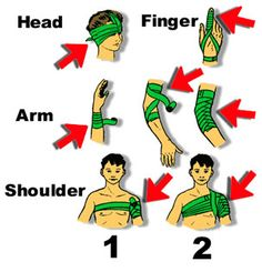 The important thing to remember when using an emergency / trauma bandage is to keep it tight so it can help control bleeding. The illustrati...