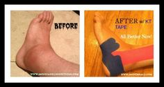 Learn all you need to know about KT Tape! Great if you have an injury or are in pain. Helps you get back in the sports & activities you love.  #KTTAPE #Tip #FitFluential