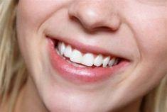 De fem beste helsefordelene med aloe vera — Veien til Helse Dental Braces, Teeth Braces, Cheek Implants, Teeth Straightening, Genuine Smile, Lose 5 Pounds, Stubborn Belly Fat, Pharmacology, Wedding Photography Packages