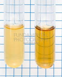 What are some causes of cloudy urine?