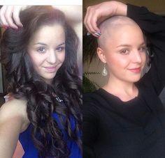 WEBSTA @ buzzcutfeed - Hair Doesn\'t Define UsThanks @terezz97 #BuzzCutFeed #ShavedHead#BuzzCut #BuzzCuts#BuzzCutChallenge#GirlsWithBuzzCuts#GirlsWithShavedHeads#GirlsWithShortHair#GirlsWithShavedHair #ShortHaircut #ShavedHair#ShortHairDontCare #ShortHair#BaldIsBeautiful #BaldGirl #BaldGirls#Alopecia #AlopeciaBeauty #NoHairDontCare