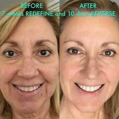 "Awesome 2 month results! ZOOM in! Here's what Patricia had to say:  ""I LOST BIG TIME!!!!!  I lost crow's feet! I lost fine lines and wrinkles! I lost spongy looking skin and large pores! I lost uneven skin tone! I lost the turkey neck! I lost blemishes! I'm not wearing makeup in either picture.""   Take the leap! You are worth results like these!   Kashacampbell.myrandf.com  Get your REDEFINE Amp It Up Special (Includes the AMP MD Roller and Night Renewing Serum) PLUS FREE box of Acute Care…"