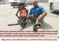 What is Post Polio Syndrome - Natural Herbs Clinic