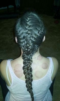 """Braids and marks from """"cupping"""""""