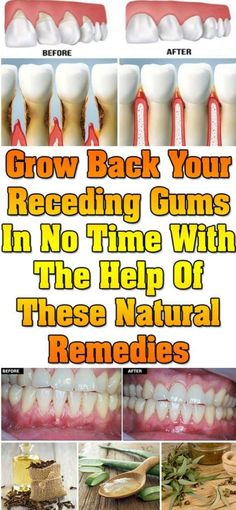 Grow Back Your Receding Gums In No Time With The Help Of These Natural Remedies – All Just You