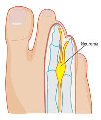 Foot neuroma is also known as Morton's neuroma and is a common cause of foot pain, burning, tingling, cramping and sharp pain into the toes. Mortons Neuroma Treatment, Nerve Problems, Morton's Neuroma, Plantar Fasciitis Treatment, Foot Remedies, Foot Pain Relief, Muscle And Nerve, Sore Feet, Stretching