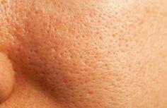 Große Poren natürlich verkleinern