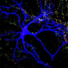 Image shows how astrocytes help build neural connections.