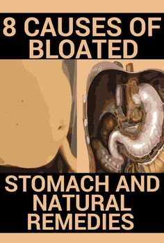 8 Causes Of Bloated Stomach and Natural Remedies - The Healthy Food House Natural Remedies For Anxiety, Anxiety Remedies, Natural Cures, Natural Healing, Natural Treatments, Bloating Causes, Stomach Bloating Remedies, Natural Bloating Remedies, Anti Bloating