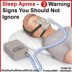 Sleep Apnea - 3 Warning Signs You Should Not Ignore