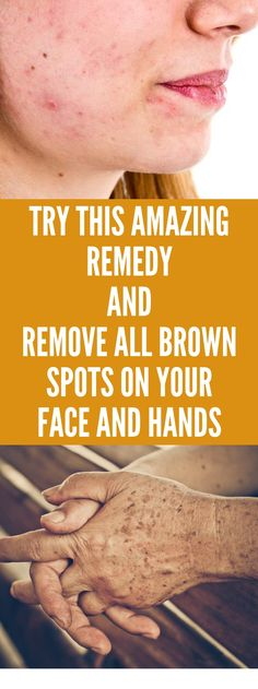 Famous Dermatologist Revealed: Remove Brown Spots On Face And Skin With This Simple Trick! Black Spots On Face, Brown Spots On Hands, Age Spots On Face, Spots On Legs, Dark Spots, Skin Spots, How To Get Rid, How To Remove, Sunspots On Face