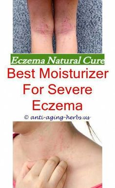 Cellulite Removal Thighs #HowToCelluliteRemoval Post:6957974200 #HowToTreatCellulite #NaturalCelluliteRemoval #BestCelluliteRemoval #WhatIsCelluliteRemoval Scalp Psoriasis Treatment, Le Psoriasis, Plaque Psoriasis, Eczema Causes, Severe Eczema, Eczema Symptoms, Herpes Remedies, Distance, Healing
