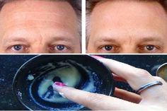 Csodálatos házi kence, ami 7 nap alatt törli még a legmélyebb ráncokat is! Plastic Surgery, Rid, Beauty Hacks, Beauty Tips, Skin Care, Cosmetics, Homemade, Make It Yourself, Face