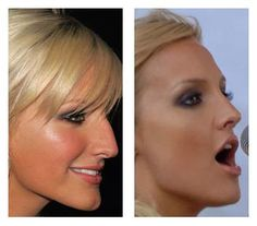 Ashley Simpson Before and After Rhinoplasty by Dr Raj Kanodia