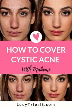 Cystic acne can be very frustrating. It takes a while for all those home remedies and face masks to work. While your acne heals, there may be events where you feel like you'd like to cover it up. In this tutorial I am going to show you how to effective Covering Acne With Makeup, Beauty Hacks For Teens, Acne Makeup, Skin Care Remedies, Best Beauty Tips, How To Get Rid Of Acne, How To Treat Acne, How To Apply Makeup, Acne Treatment