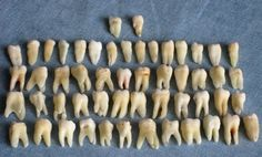 Shopping for a new wallet at Walmart sounds simple enough. Unfortunately for one shopper at a Massachusetts store, he bit off more than he could chew when he found 10 human teeth inside a brand-new wallet. He informed Walmart employees, who contacted the police. Officers were baffled, confirming that they were human teeth but unable to find out whose teeth they were or how they had got there.