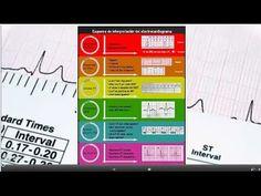 Youtube: análisis de interpretación del #electrocardiograma. #cardiología #ecg #ekg #electrocardiografía #enfermería